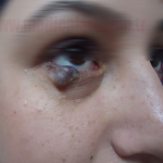 Göz Kapağı