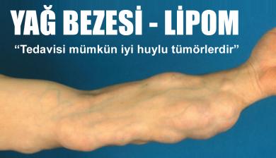 Lipom