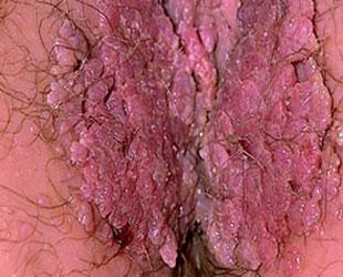 Hpv virus keel symptomen. Cât costă un test ITS? - Hpv virus vrouw symptomen