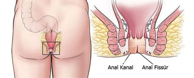 Makat çatlağı kanama ve ağrıya neden olur.