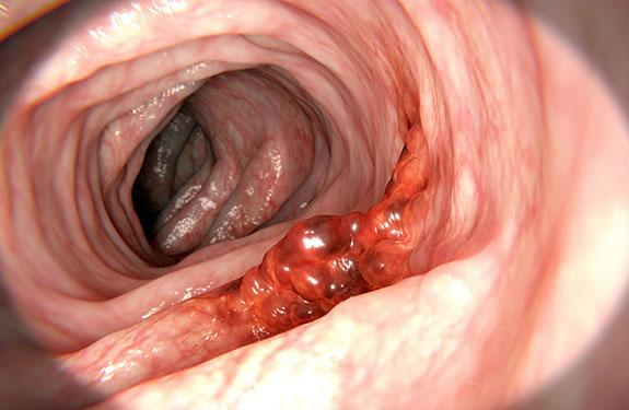 Kalın bağırsak kanseri