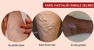 Varis (venöz yetmezlik)